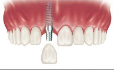 Zubni mplantati