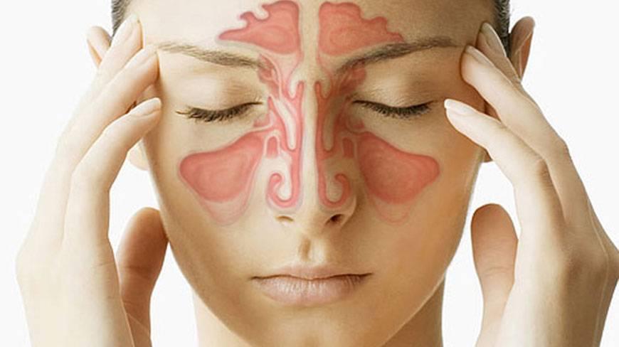 sinusitis upala sinusa simptomi i prirodni lek