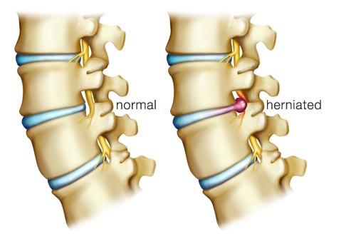 Diskus hernija - simptomi, lecenje, iskustva, operacija i oporavak