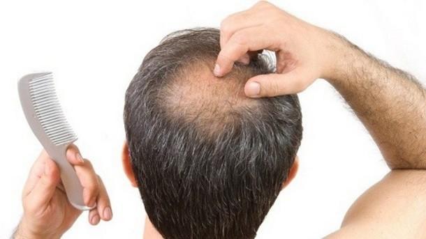 Seboreja seboreicni dermatitis opadanje kose - simptomi i leenje