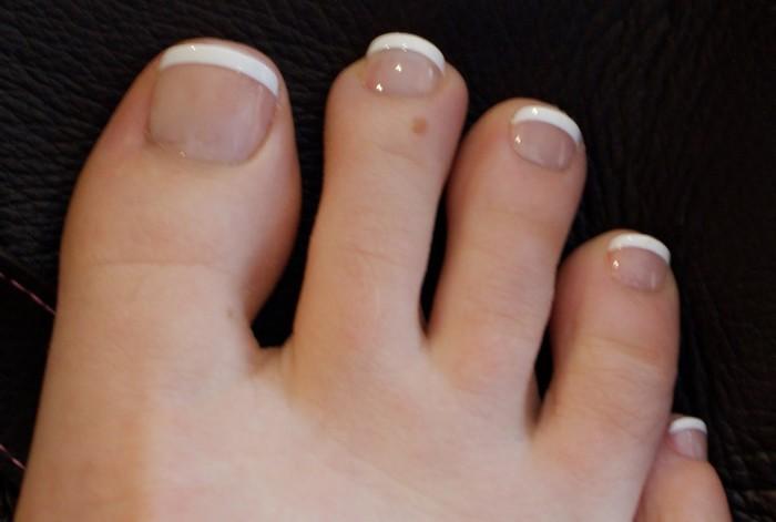 Urasli nokat - simptomi, upala, lecenje, operacija i oporavak