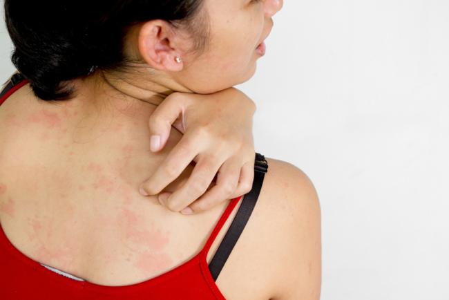 Alergija, crvenilo i svrab na koži - simptomi i lečenje