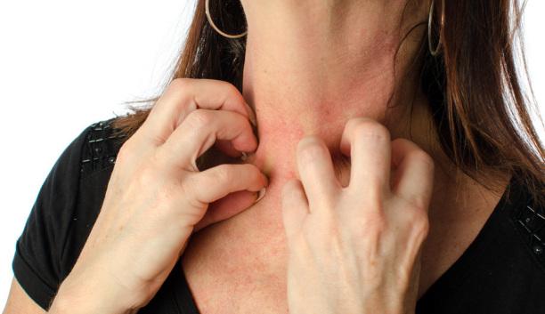 Alergija na histamin - intolerancija, simptomi, ishrana i lečenje