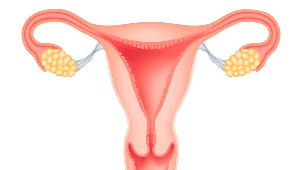 Ciste na jajnicima - simptomi, vrste, krvarenje, pucanje i lečenje