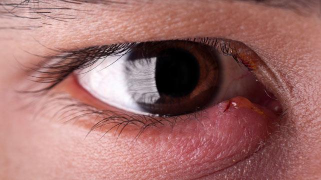 cmičak na oku - uzroci, simptomi i lečenje