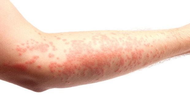 Alergija na sunce - simptomi, iskustva i lečenje