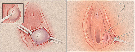 Bartolinijeva žlezda - uzroci, simptomi i lečenje
