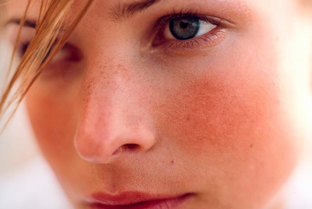 Kako ukloniti crvenilo na licu i obrazima - lečenje rozacee