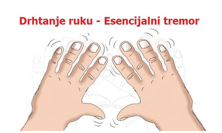 Drhtanje ruku esencijalni tremor – simptomi i prirodno lečenje