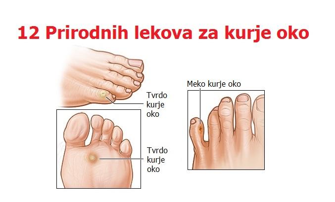 Kurje oko na stopalu i ruci – uzrok i lečenje