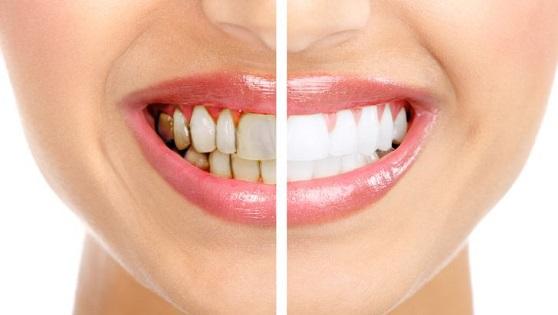 Upala zubnog mesa, gingivitis – uzrok, simptomi i lečenje