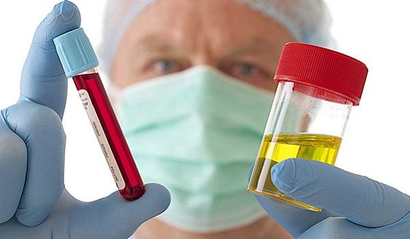 Analyse médicale - Sang & Urine